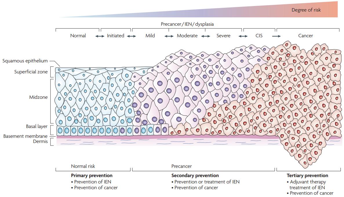 Cin 4 papilloma, HPV genotipare în leziune/raclat (regiunea anogenitală și orală)