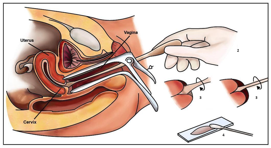 Real gyn exam insert uid merina speculum uterus cervix 6