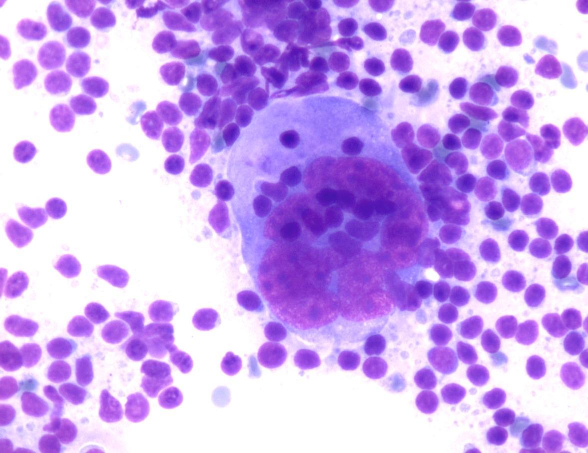 Hodgkin Lymphoma   Eurocytology