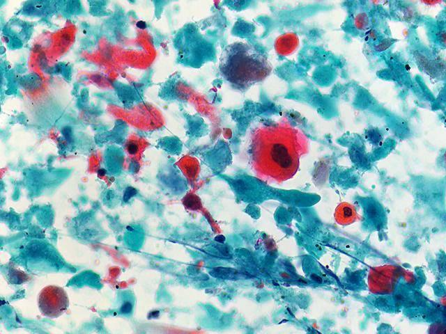 Squamous cell carcinoma | Eurocytology