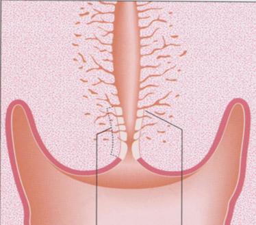 La anatomía del cuello uterino | Eurocytology
