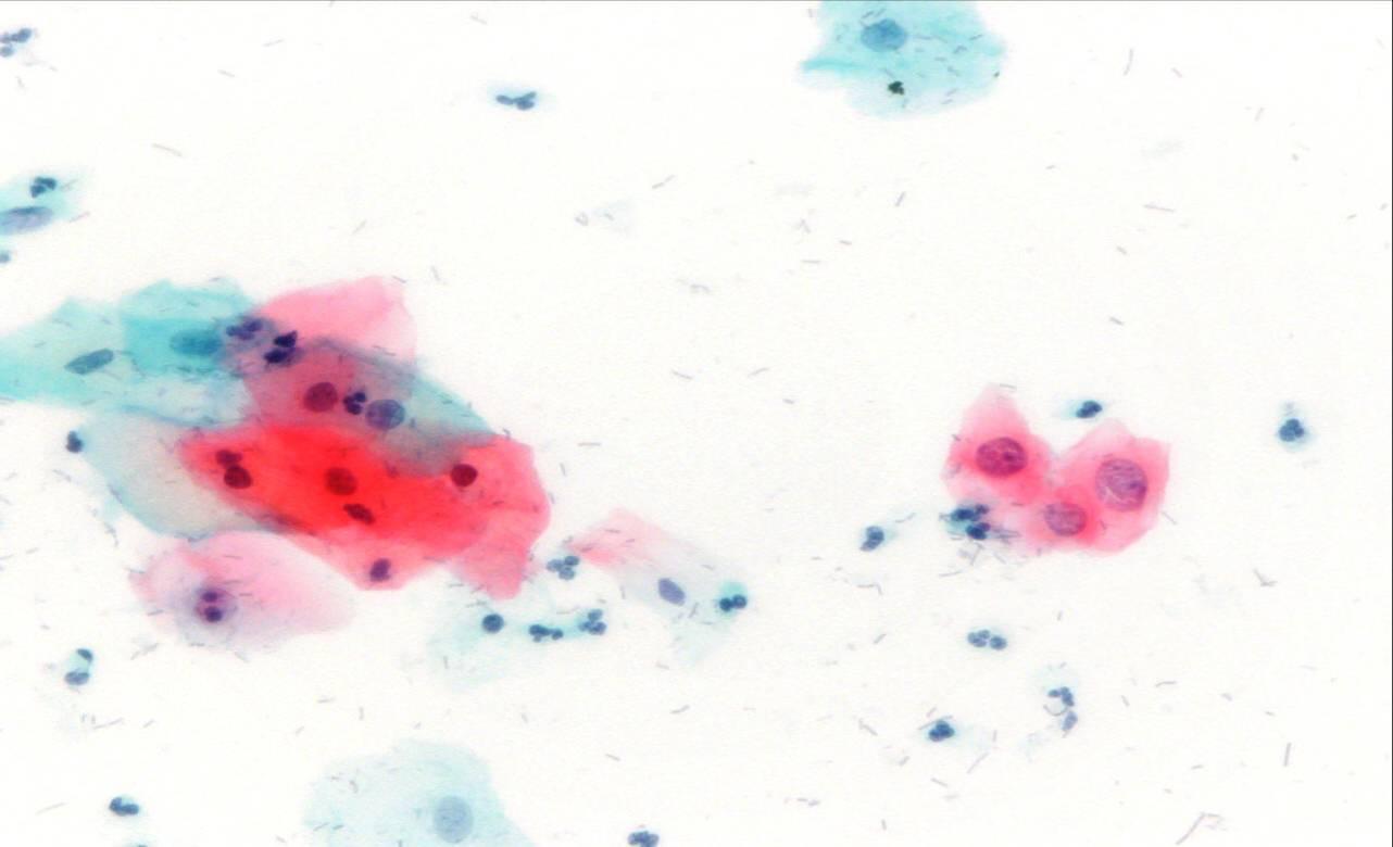 hpv atipikus laphámsejtek lárvák trohofore platyhelminthes